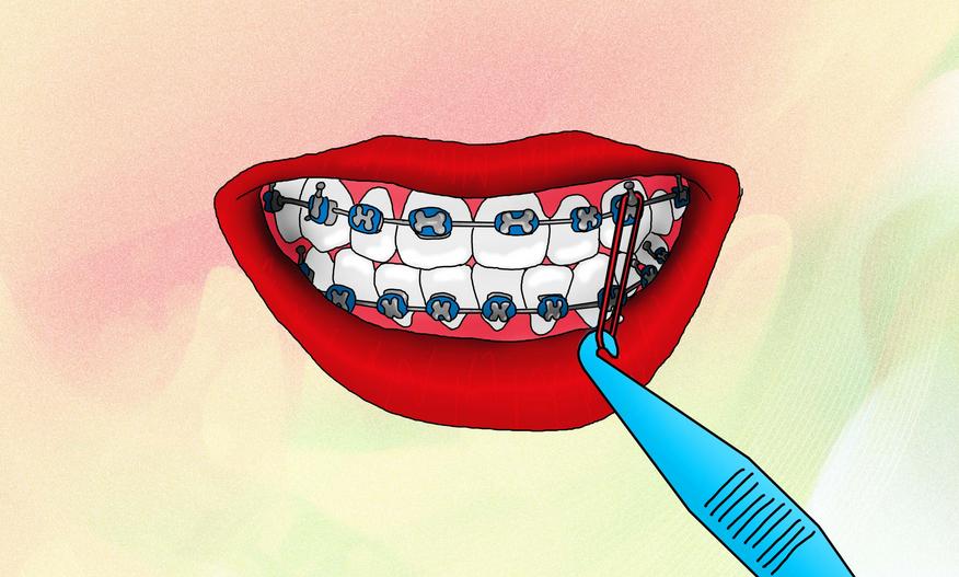 Itu baru urusan karet behel yang regular. Belum lagi karet tambahan yang  kadang dipasang di gigi tertentu 046b29cb13