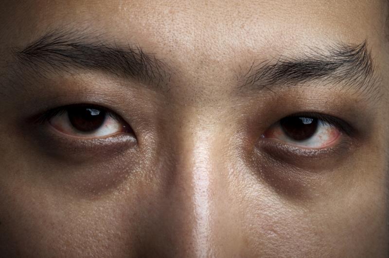 mengantuk mata panda lelah wajah pucat