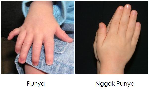 jari tangan ekstra